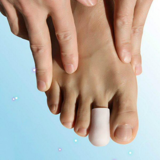 A Pair Of Silicone Corns Toes Protect Case 2021