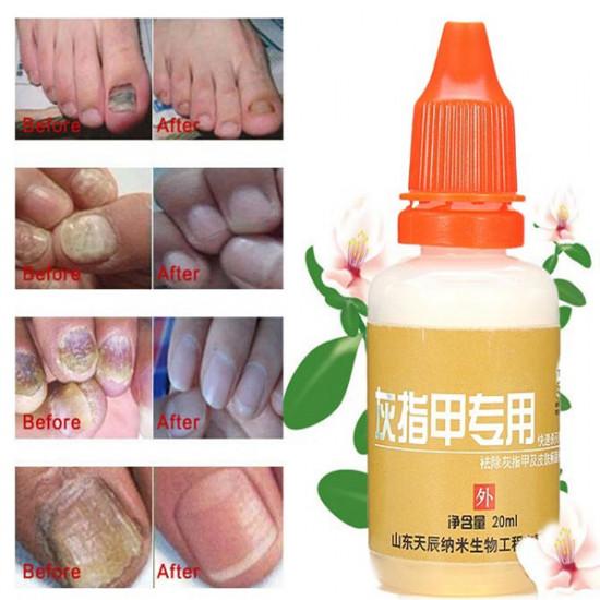20ML Onychomycosis Nursing Leuconychia Ringworm Of Nail Repair Liquid 2021