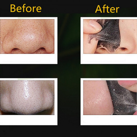 AFY Deep Cleansing Nose Blackhead Pore Removal Cleaner Mask 2021