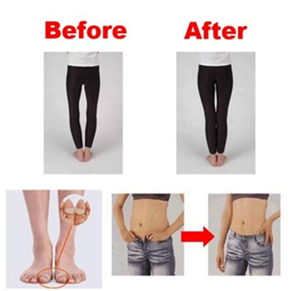 Buy 2Pcs Magnetic Silicon Toe Ring Slimming Loss Weight ...